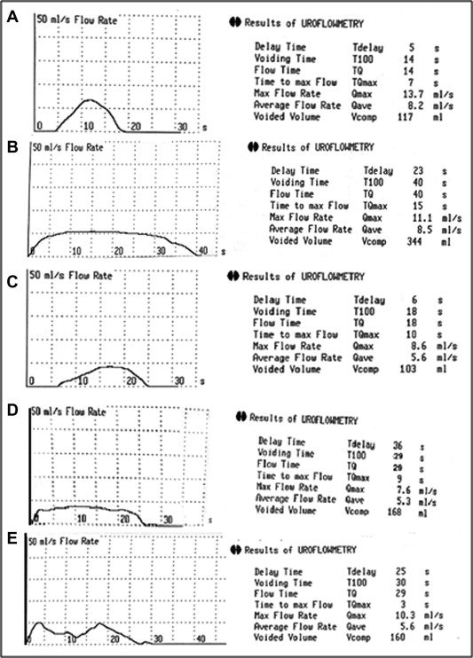 The postoperative uroflow patterns. (A) A bell-shaped