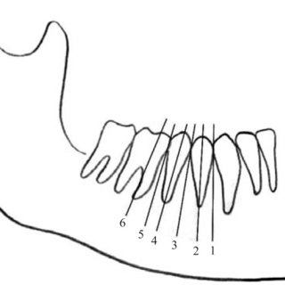 Mental foramen in position 4 at the apex of the second