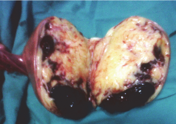 Cut section through the ovarian mass showing heterogenous ...