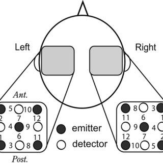 Arrangement of NIRS recording probes. A schematic top view