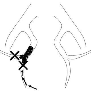 Pelvic angiography after embolization of the right