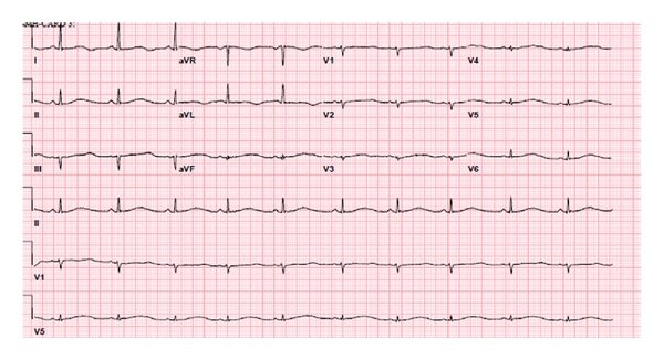 12-lead ECG showing markedly prolonged QT interval.   Download Scientific Diagram