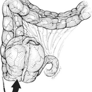Cecal bascule The mobile cecum folds back upon itself