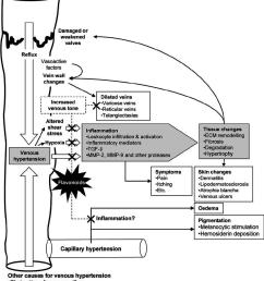 pathogenesis of chronic venous disease cvd and mechanisms of download scientific diagram [ 850 x 978 Pixel ]