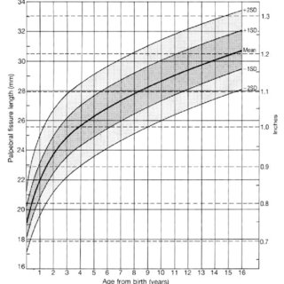 Palpebral fissure length. To measure palpebral fissure