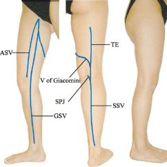 Veins In The Foot Diagram 2005 Hyundai Accent Stereo Wiring Surface Distribution Of Major Superficial Aasv Anterior Accessory Saphenous Vein Gsv