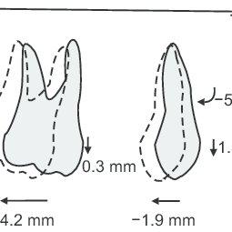 Graphic representation of maxillary superimposition for