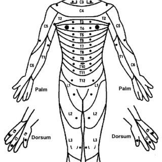 American Spinal Injury Association (ASIA) sensory key