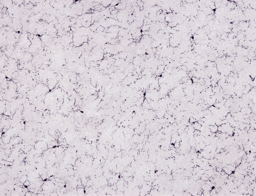 I am staining mouse brain microglia with Iba1 and I am