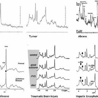 Sample magnetic resonance spectroscopy report. Sample