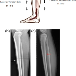 Diagram Of Tibia Stress Fracture G Body Steering Column Wiring A Location Tibial Diaphyseal Fractures B Radiograph An