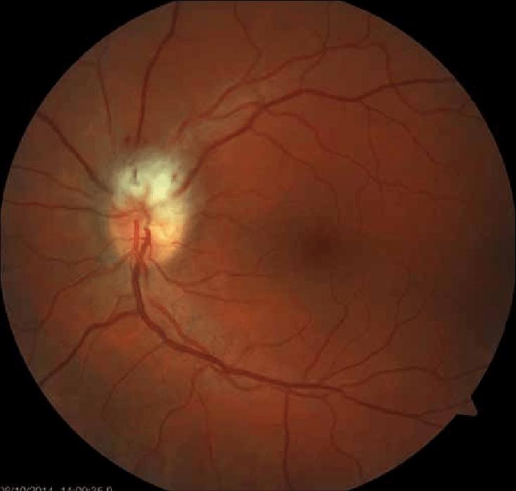 diagram of the left eye headlight wiring with relay fundoscopy eye: ischemic edema in upper half the... | download scientific