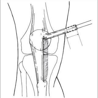 (PDF) Randomized prospective study on traumatic patellar