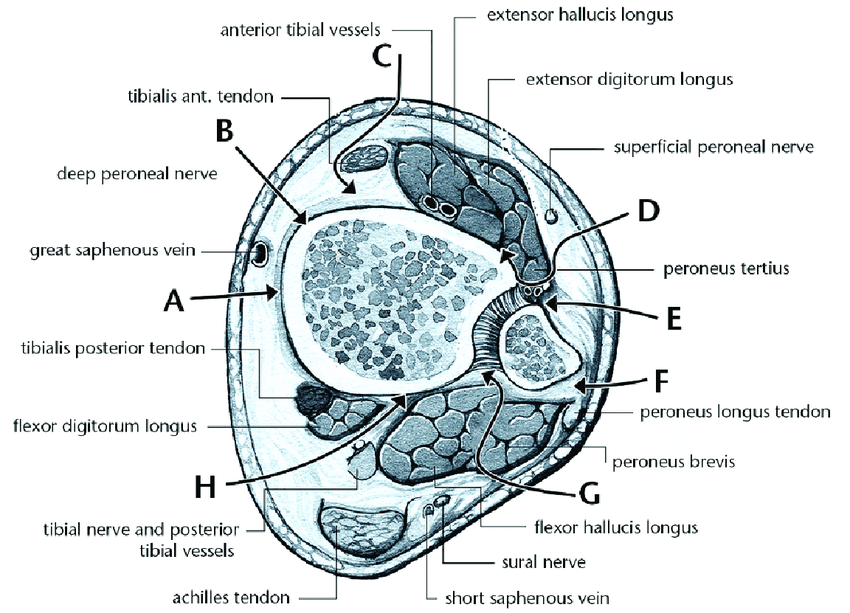 Schematic Drawing Of Surgical Approaches To Distal Tibia