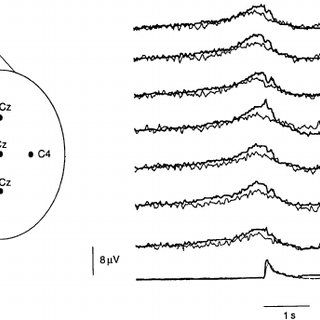 Electromyographic recordings of dystonic EMG activity in