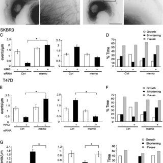 (PDF) Memo–RhoA–mDia1 signaling controls microtubules, the