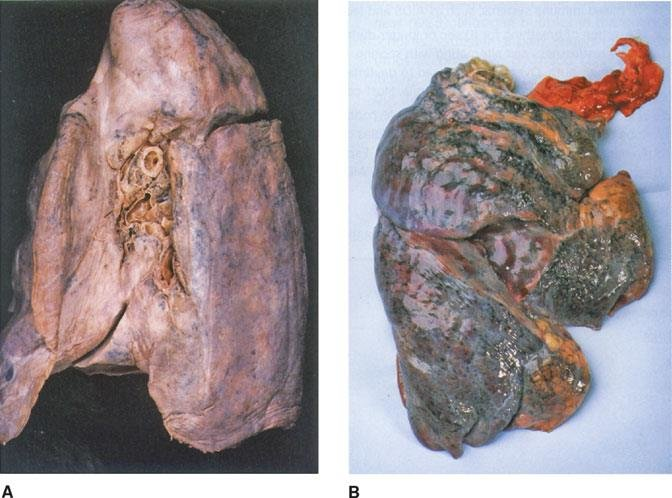 figure a healthy lung