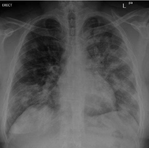 Chest radiograph from patient 2 with severe MERS-CoV pneumonia ...
