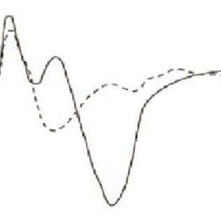 (PDF) Brain Computer Interface: Principles, Recent