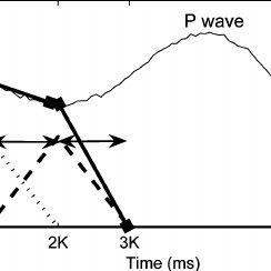 (PDF) Quantifying the PR Interval Pattern During Dynamic