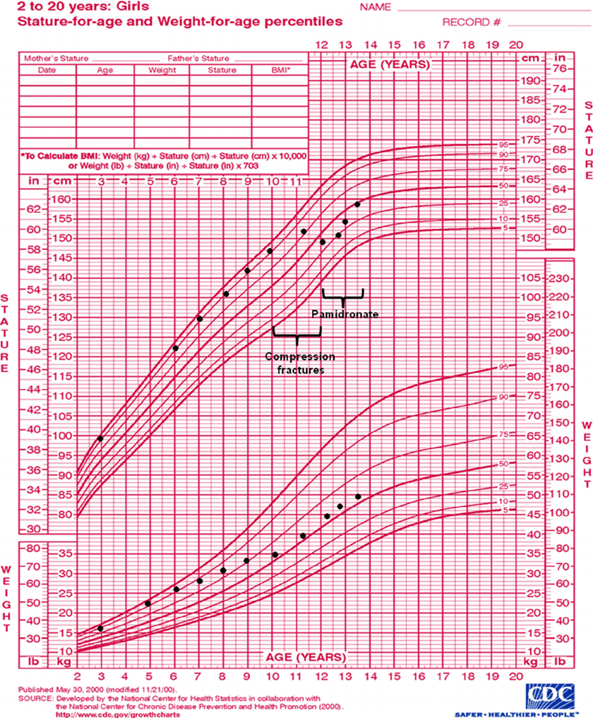 old scientific diagram of top hand growth chart girl with osteoporosis. decline in height percentile... | download ...