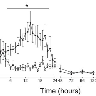 Panel A shows an example of normal EEG activity prior to