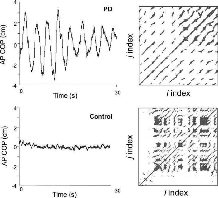 Anterior-posterior center of pressure (COP) time series