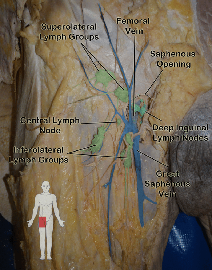 lymph nodes in groin location diagram basic car alarm wiring cadaveric image of inguinal lymphatics noted on gross dissection a... | download scientific ...