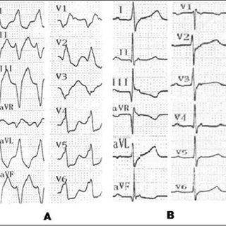 (PDF) Left bundle branch block type wide QRS tachycardia