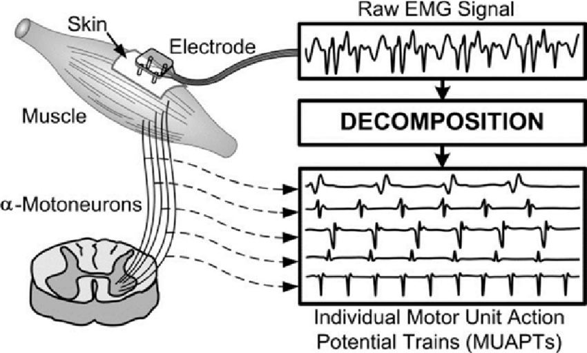 EMG signal and decomposition of MUAPs. (De Luca, et al