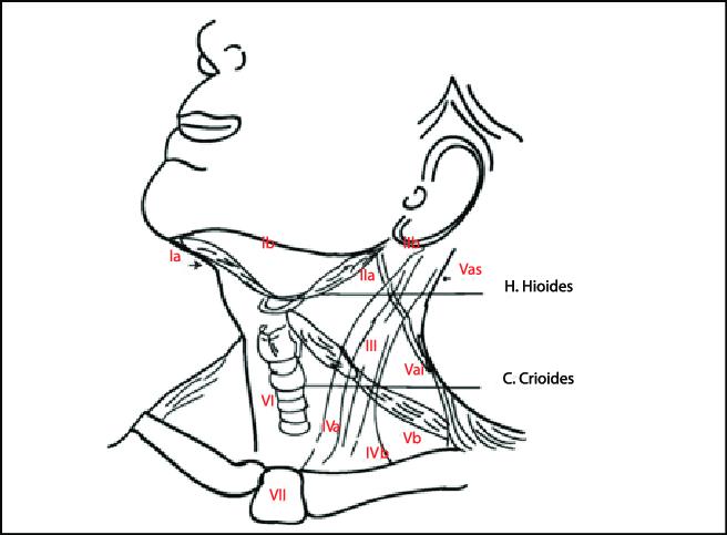 Niveles oncológicos del cuello: Nivel Ia: entre los
