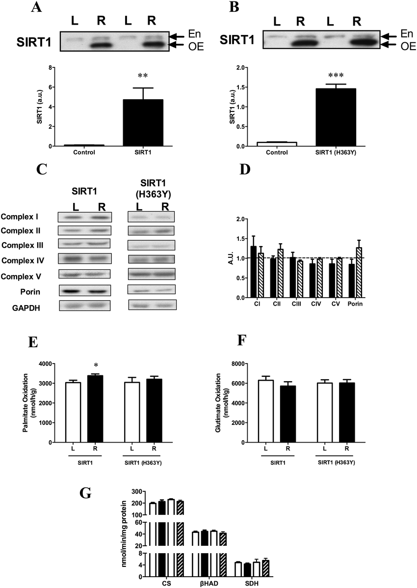Effect of SIRT1 and SIRT1 (H363Y) overexpression on