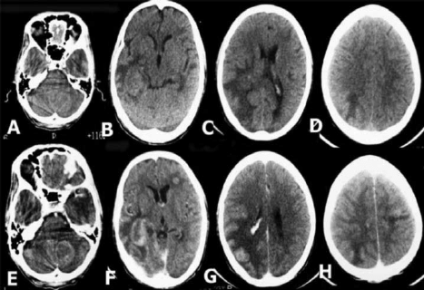 CT scan brain (plain and contrast images) showing multiple ...
