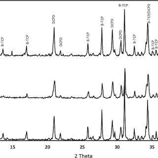 A: Representative serial 19FMR spectra of DiFMUP and its