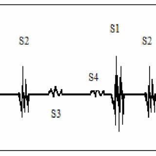 (PDF) Phonocardiogram Signal Segmentation and