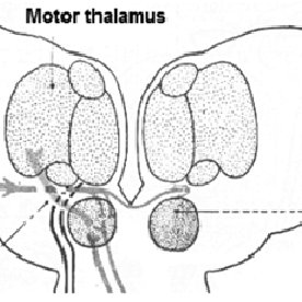 Red nucleus and subthalamic nucleus. The position of the