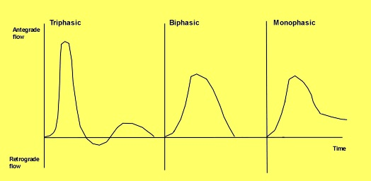 What is the difference between biphasic and triphasic ...