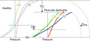 Representative, schematic diagram showing the pressure