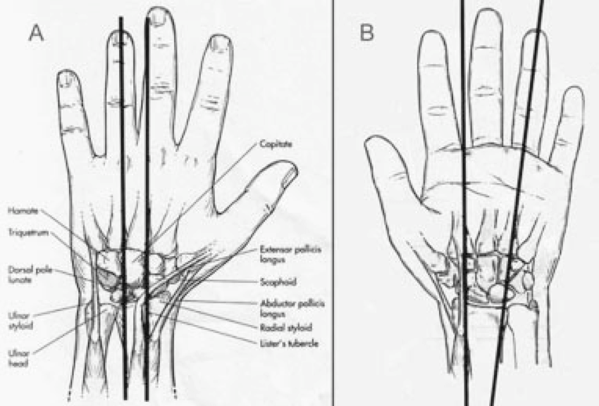 1. TOPOGRAPHIC ANATOMY OF THE WRIST. A) Dorsal surface of