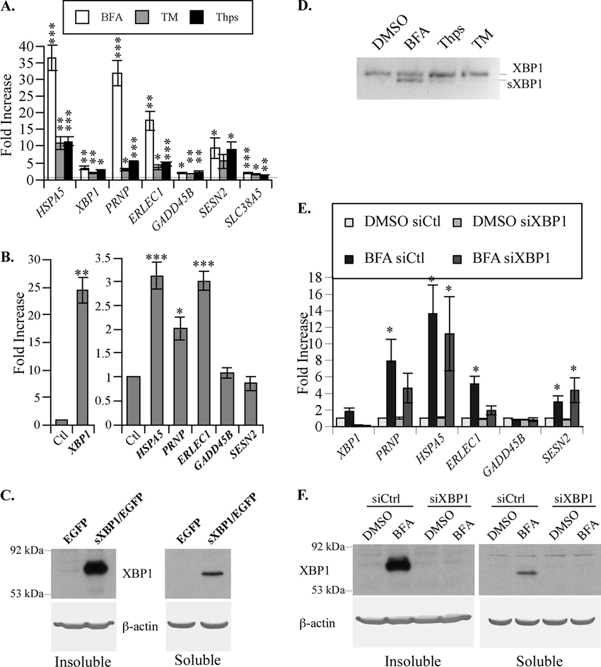 MCF-7 cells show induced ERSE-26 gene expression following