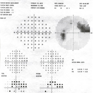 Visual field of the left eye. Printout of the visual field
