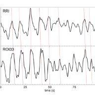 (PDF) Brain-heart communication: Evidence for
