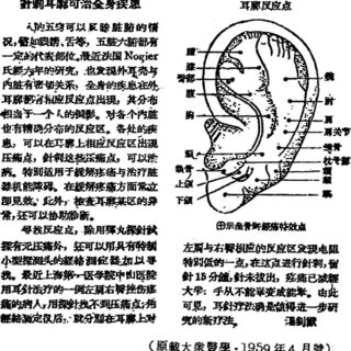 ''The sensory homunculus.'' From: Penfield W, Rasmussen T