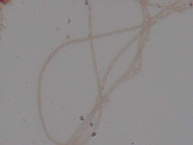 Has anyone seen this filamentous bacteria in activated sludge?