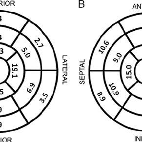 A representative cardiac MRI example of apical HCM in a 54