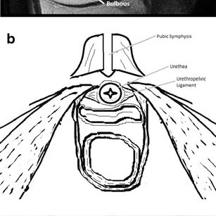 (PDF) Magnetic resonance imaging of solid urethral and
