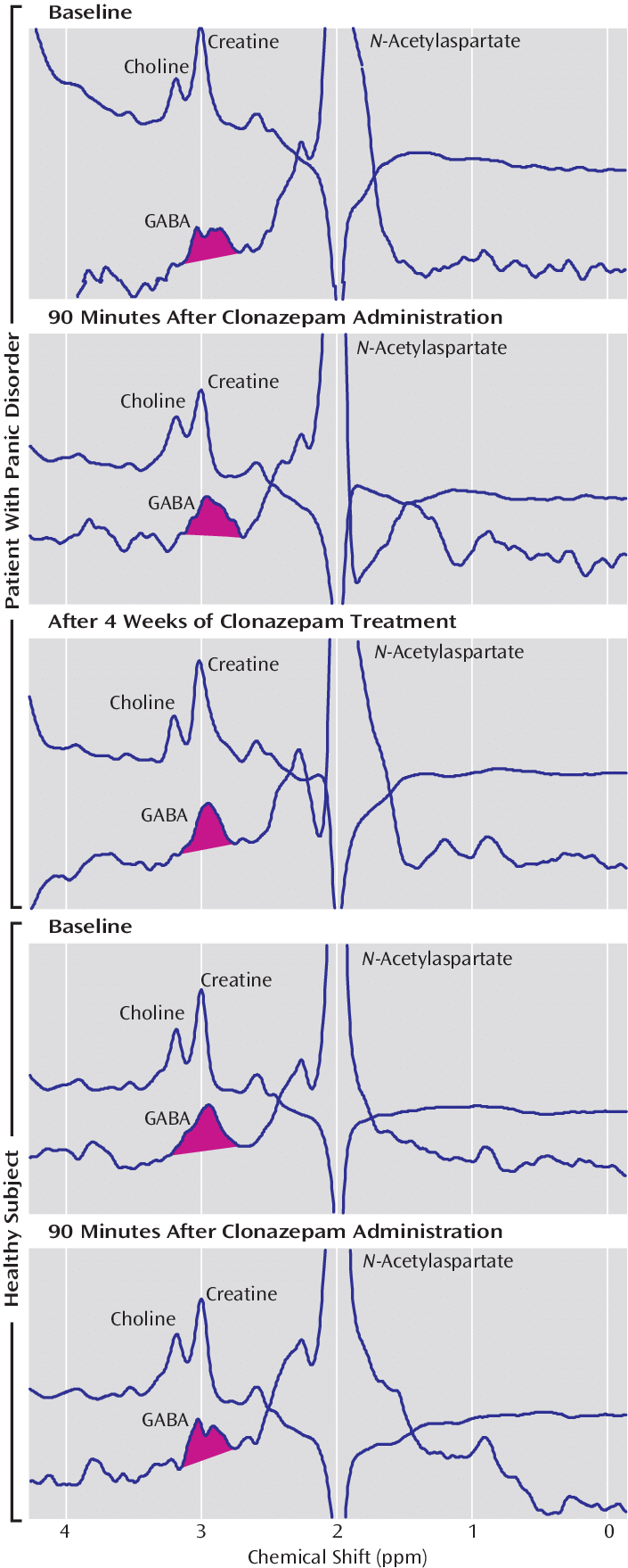 medium resolution of representative gaba spectra obtained before and after clonazepam exposure in a panic disorder subject and an