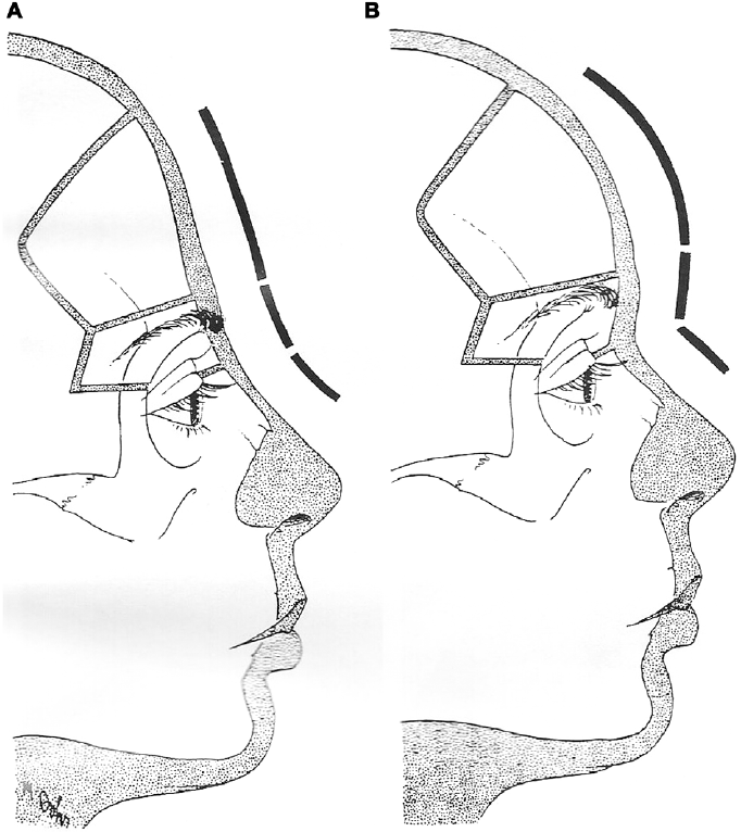 The upper forehead and the supraorbital bar contribute to