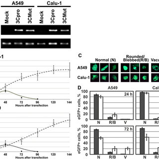Cathepsin B activity and localization of acidic organelles