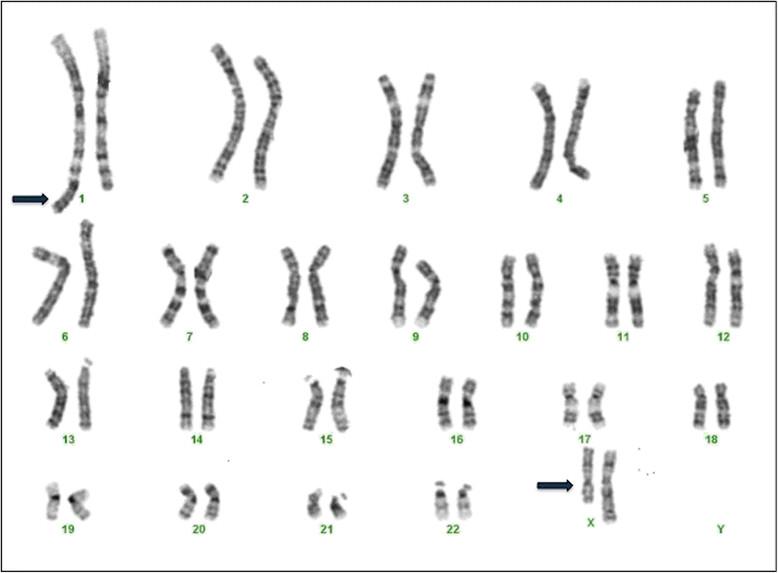 Patient G banded karyotype. Karyotype at 550 band